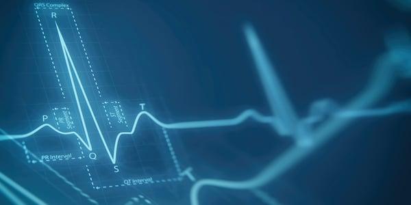 Inleiding elektrocardiografie voor recoveryverpleegkundigen